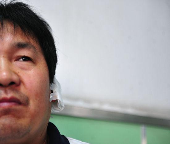 刘师傅称被几名男子打裂耳朵