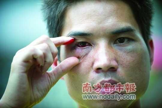 皮某身上多处被打伤。
