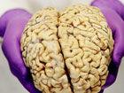 揭秘大脑解剖全过程