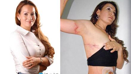 墨西哥一前女市长遇害 死前遭刀刺毒打焚烧(图)