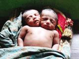 PM2.5影响胎儿发育造成缺陷