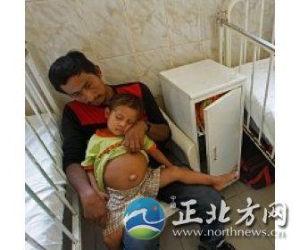 3岁男童胃中有一个未成型的胎儿。
