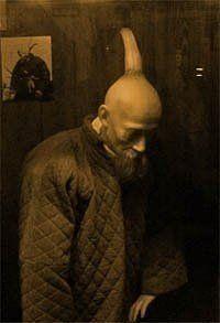 男子后脑勺上方长了一个十四英寸长的尖角。