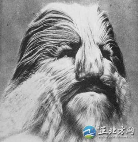 男子长有狮子脸。
