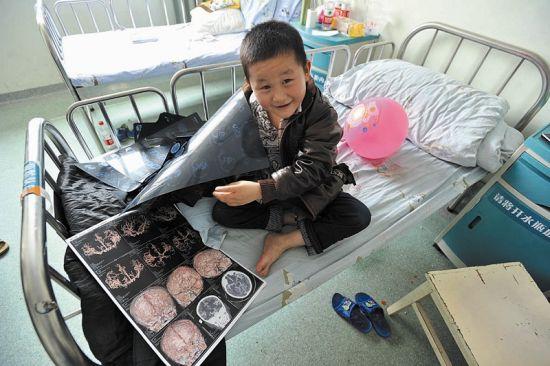 目前,病情已影响到冉绍州右手的活动能力,亟需做手术