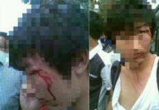 高中生拍城管不文明执法遭围殴 城管队员停职调查