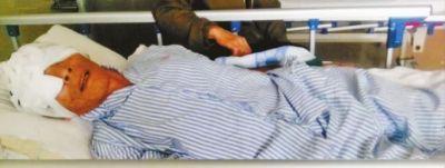广东一老人住院期间双眼被挖院方称系自残