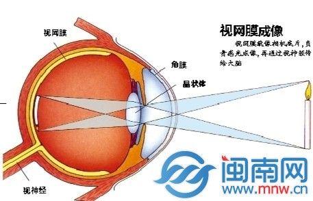 每天上网超过10小时27岁淘宝网店店主右眼失明
