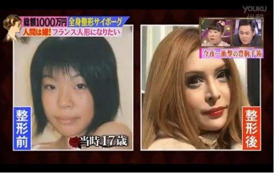 日本整形狂人千万日元整容30多次后变芭比娃娃