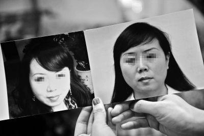 女子国内整容2次又去韩国求美失败被毁容