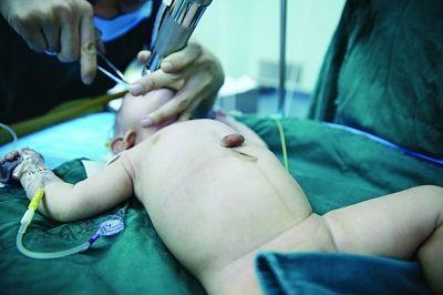 手术前的宝宝,心脏长在体外。 吴叶青 摄
