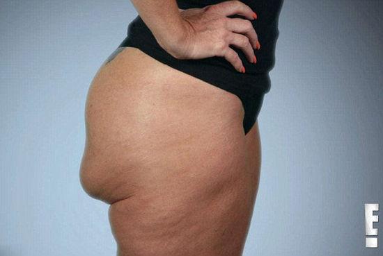 女子隆臀失败 臀部硅胶可翻转