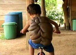 """哥伦比亚8岁""""海龟男孩""""脱去""""龟壳"""""""