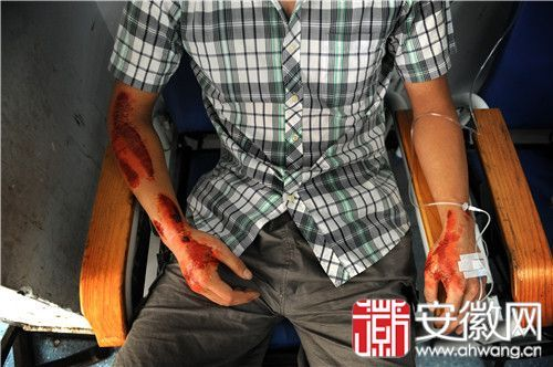 小徐在社区医院吊水,他的手臂受伤严重